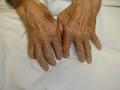 Upperrheumatoidarthritis